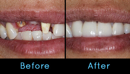 Different Types Of Teeth Whitening Procedures