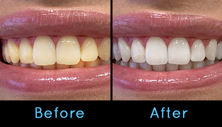 Teeth Whitening Colombo Teeth Whitening Sri Lanka